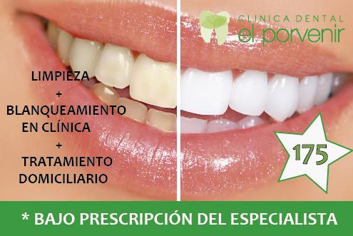 Cl nica dental el porvenir tu cl nica dental en sevilla for Clinica dental el escorial